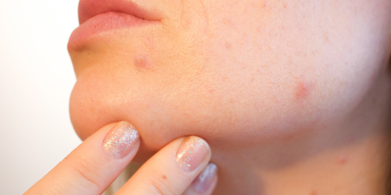 Adult Acne! The Possible Culprits and Remedies